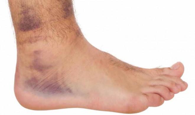 Önnek is dagad a lába? Biztosan nem ismeri ezt a régi gyógymódot!