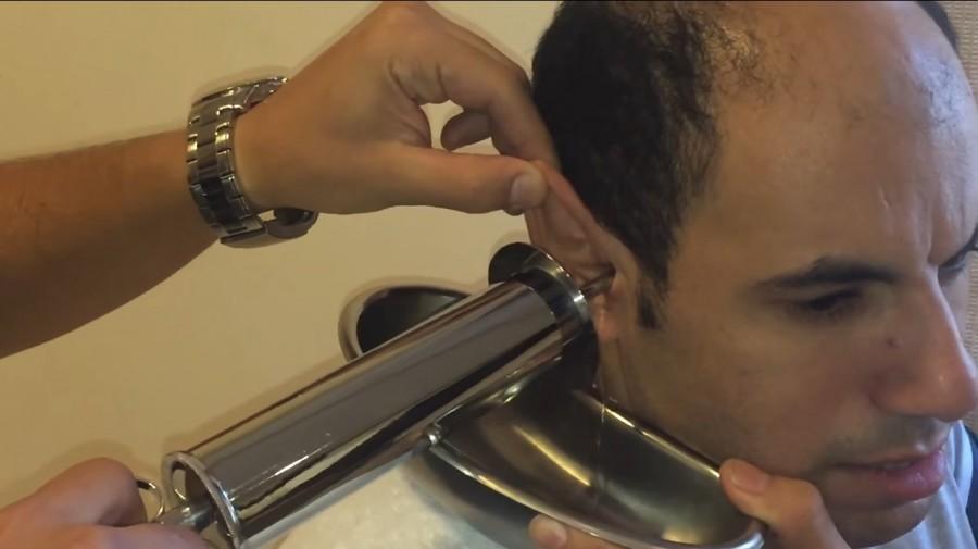 A férfi borzalmas fájdalmai miatt elment orvoshoz. Nem hiszed el mit vett ki a füléből! (VIDEO)