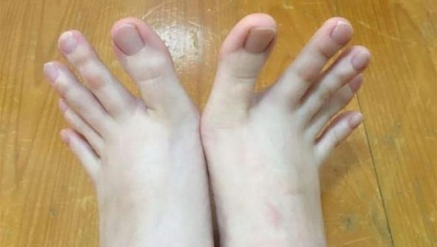 Fogadjunk, hogy ilyen lábakat még életedben nem láttál!