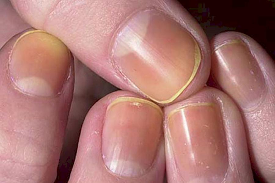 10 betegség amit előre jeleznek a körmeink!