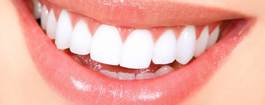 Keverd össze ezt a két dolgot, és percek alatt fehérek lesznek a fogaid!!!